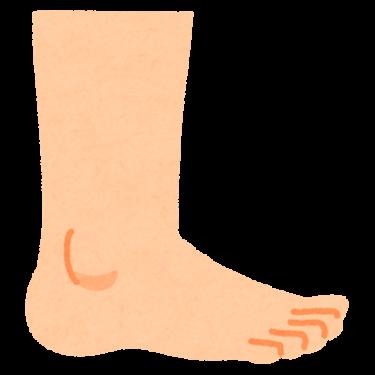 足がだるい、むくむ、冷えやすい。それって静脈瘤かも。