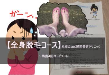 【全身脱毛コース】札幌のSBC湘南美容クリニック~施術4回目レビュー⑥